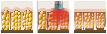medicare-wien-cellulite